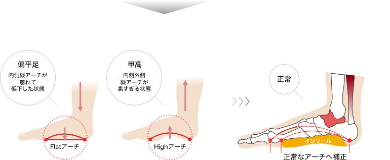 インソールで、崩れた「足裏バランス」と「アーチ構造」を正常に補正します。