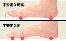 足の指力を自然に鍛えて浮指を解消