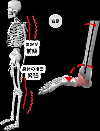 FRONTタイプの状態の図