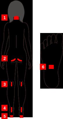 FRONTタイプの症状の図