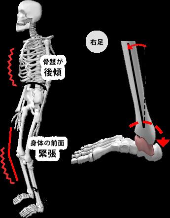 BACKタイプの状態の図