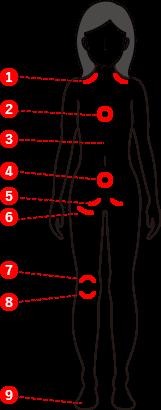 BACKタイプの症状の図