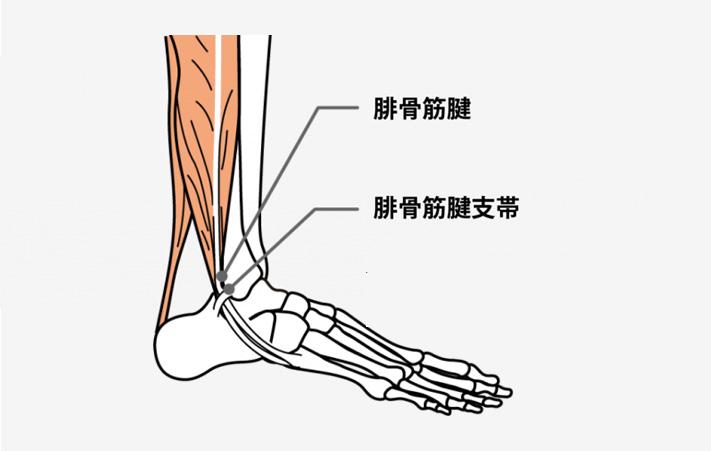 趣味でバレエを続けていますが、足の負担から腓骨筋炎に悩んでいます。