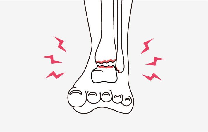 変形性足関節症と診断されましたが、手術以外の方法がありますか?