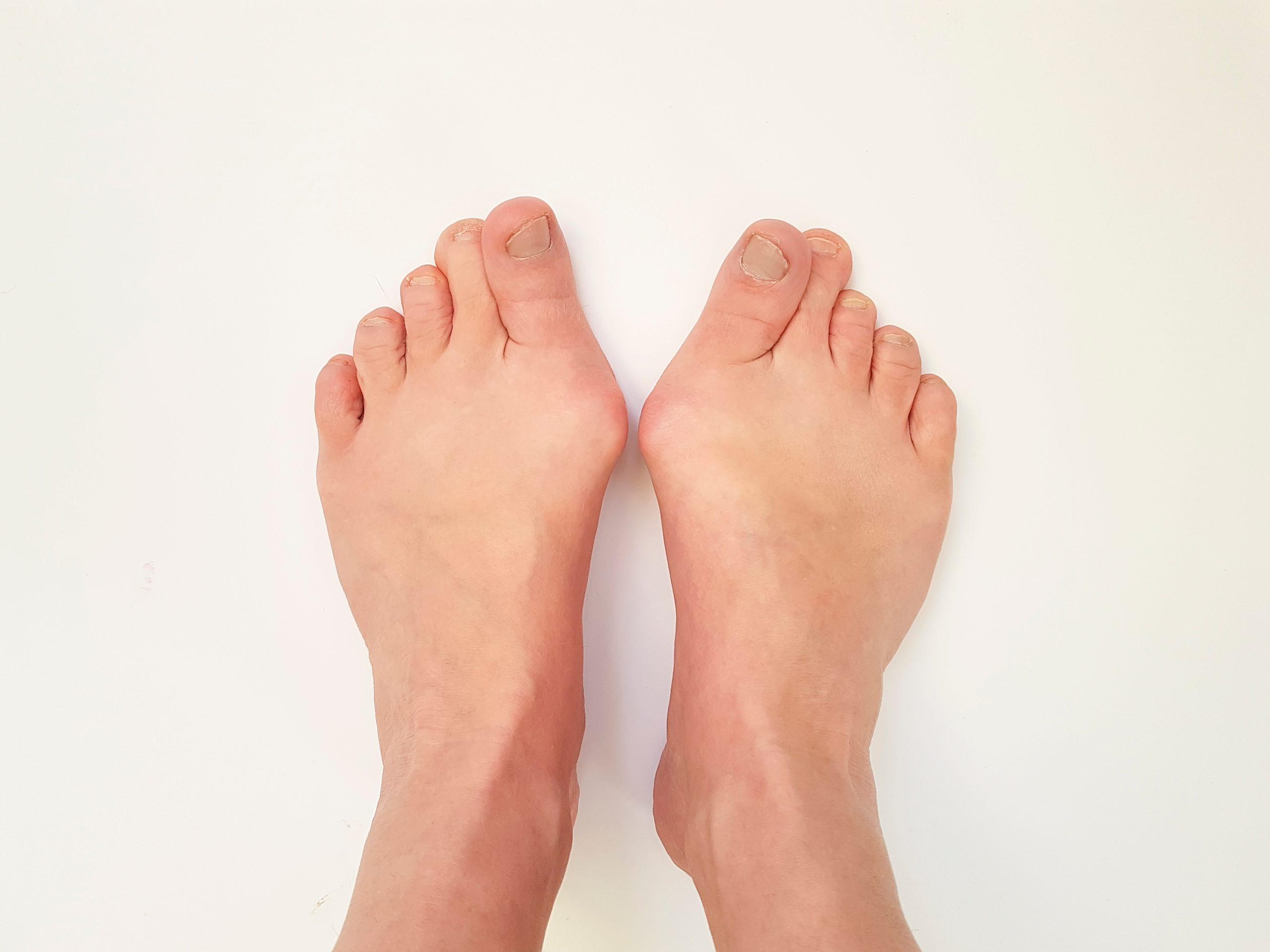 【テレワークで激増】歩かないと外反母趾は悪化する!?